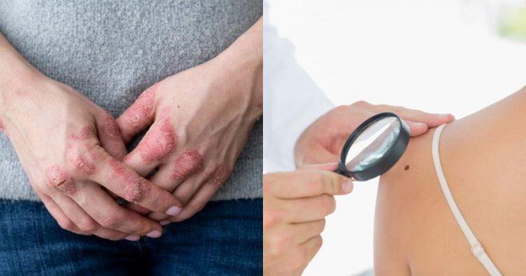 11 Jenis penyakit kulit dan cara alami mengatasinya