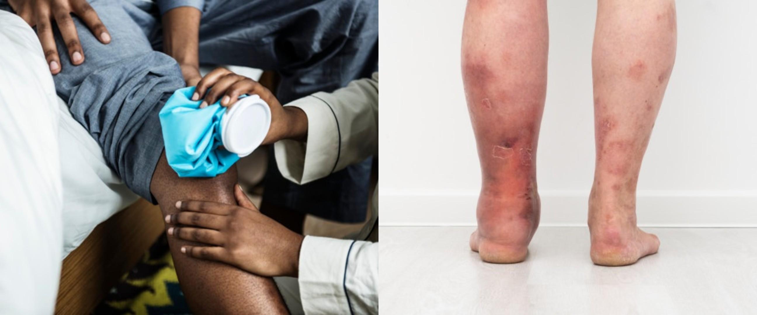 15 Penyebab kaki bengkak yang perlu diwaspadai dan cara mengatasinya