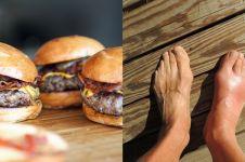 5 Penyebab asam urat dan kolesterol serta pencegahannya