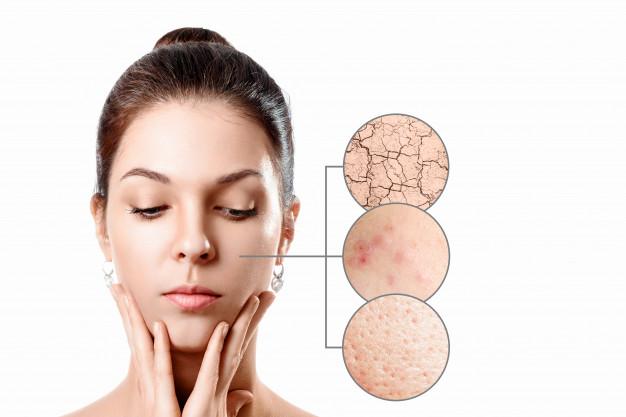 10 Manfaat minyak zaitun untuk wajah dan cara memakainya  freepik.com
