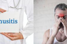 12 Penyebab sinusitis, gejala, dan cara mengobati secara alami