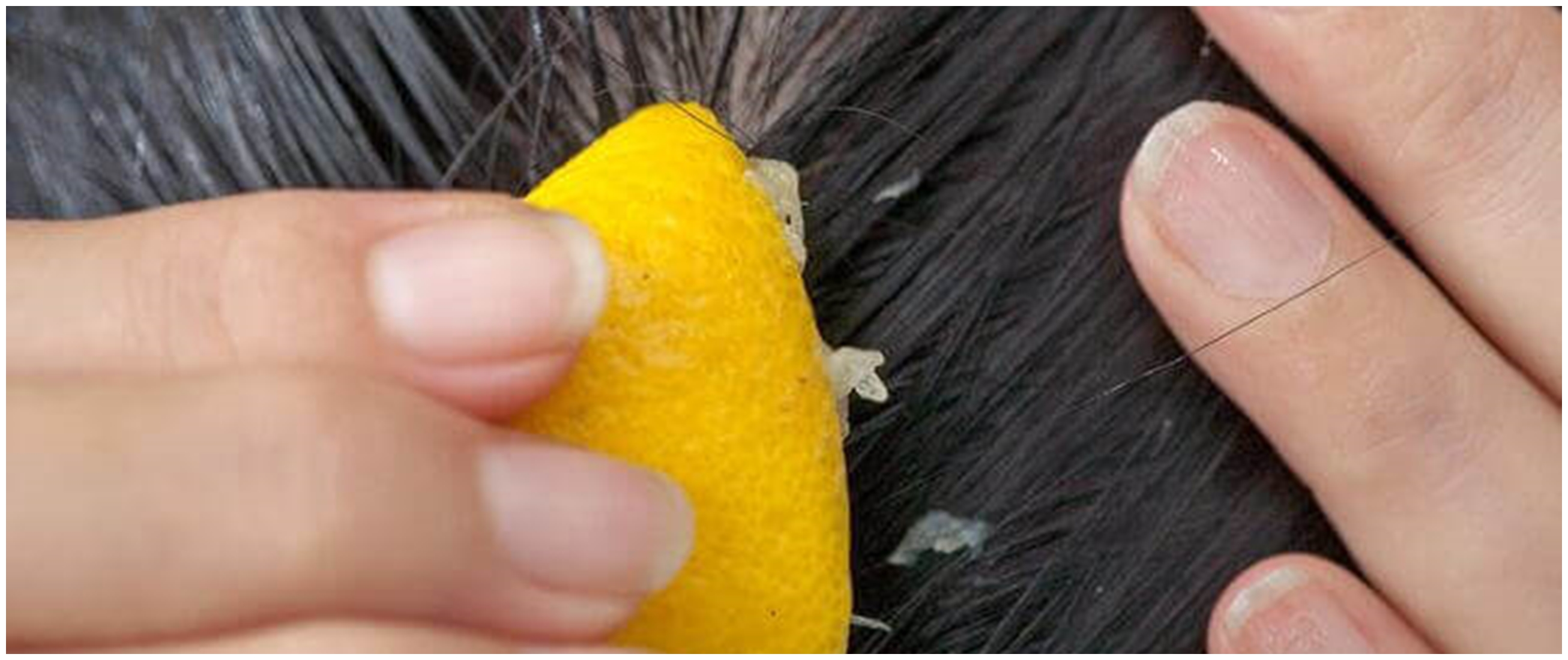 8 Cara menghilangkan ketombe dengan lemon, aman & ampuh