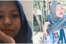 5 Potret Nabila & Nadya, anak kembar yang bertemu usai 16 tahun