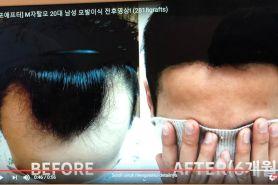 Transplantasi rambut, treatment terbaru mengatasi kebotakan