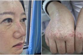 7 Foto kondisi wajah & tangan perawat urusi pasien virus Corona