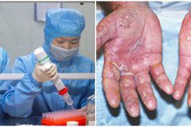 6 Foto kondisi tangan tenaga medis rawat pasien virus Corona