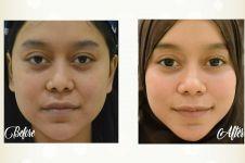 Vintagen, perawatan kecantikan mampu tingkatan sistem imun tubuh