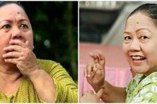 Kronologi meninggalnya aktris Purwaniatun, 40 hari dirawat di ICU