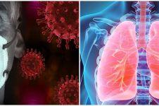 Ini yang terjadi pada paru-paru seseorang saat terinfeksi corona