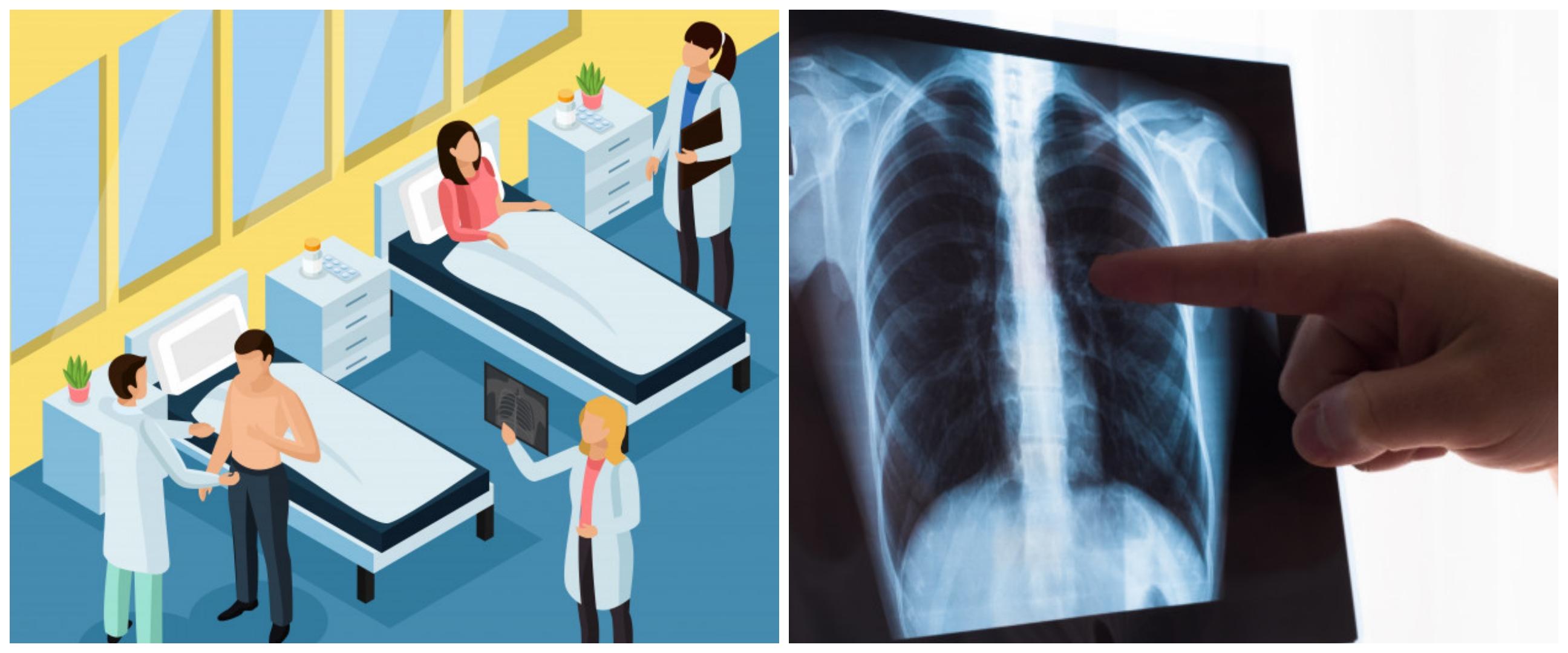Penjelasan WHO soal penanganan TBC di saat wabah Corona