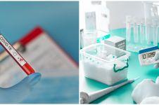 5 Fakta Rapid test Corona, uji cepat deteksi Corona Covid-19