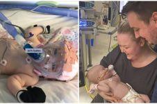 Kisah perjuangan bayi 6 bulan melawan corona ini penuh haru
