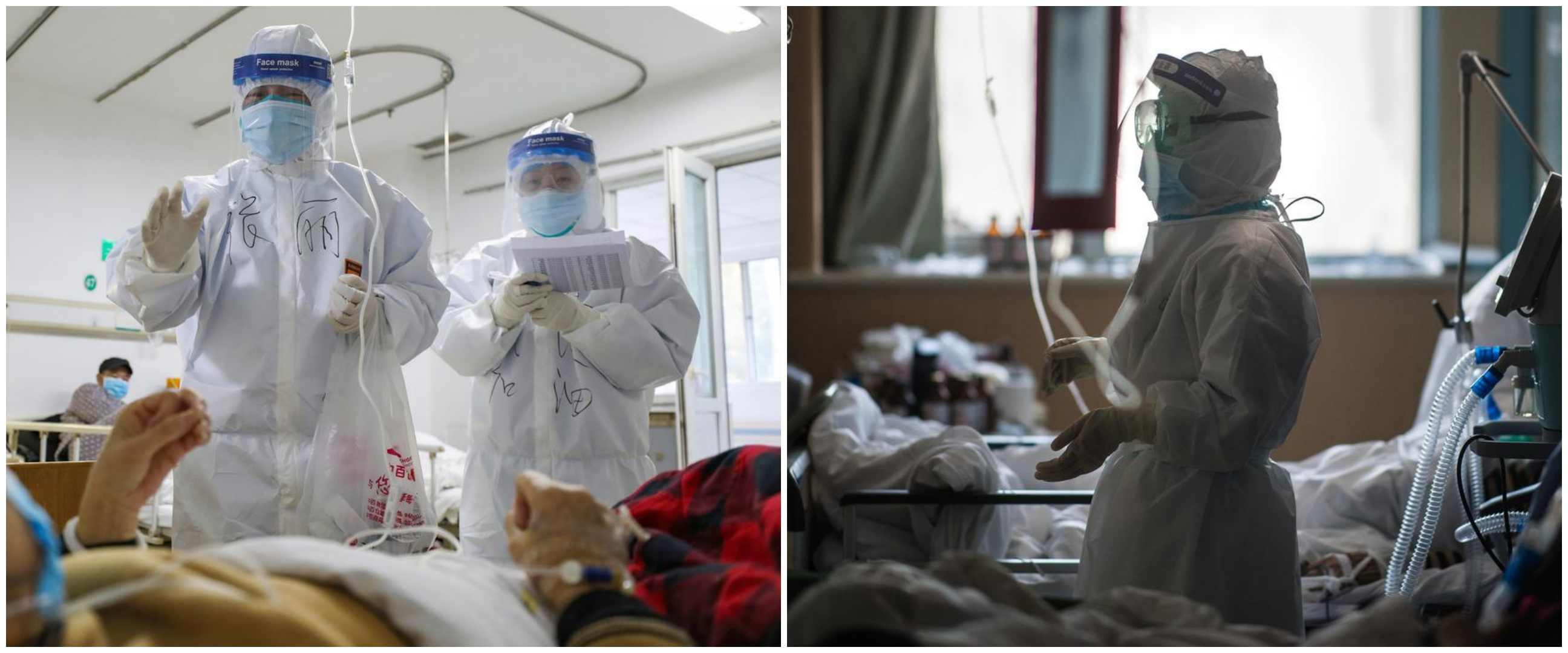 Warna kulit dokter Wuhan menghitam karena corona, ini potretnya
