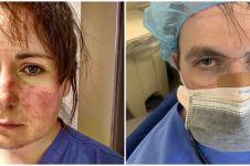 10 Potret haru tim medis usai bekerja terlalu lama, wajah penuh luka