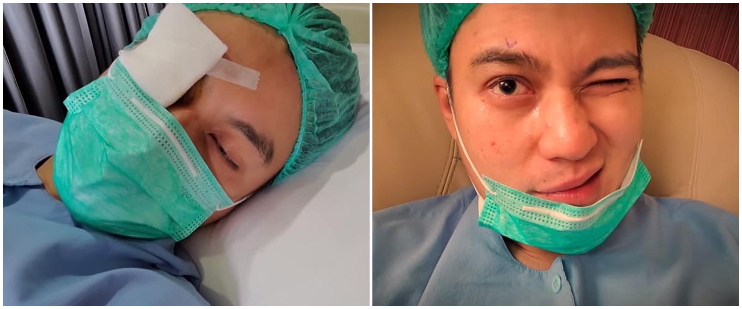 8 Potret Baim Wong jalani operasi mata, alasannya tak terduga