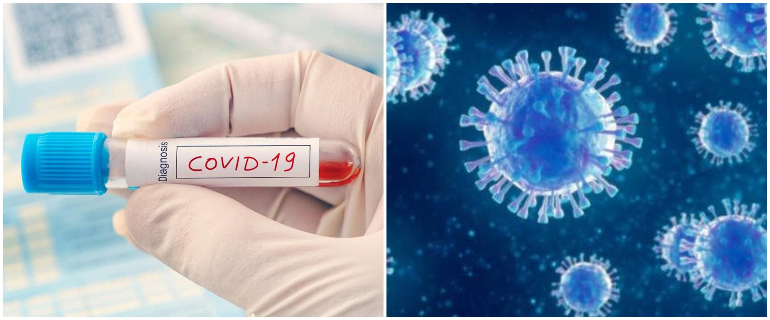 8 Miliarder baru yang ikut membantu lawan pandemi corona dunia