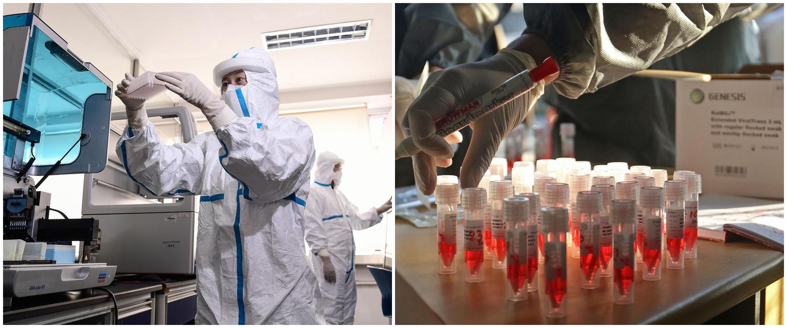 Kabar baik, antibodi virus corona telah ditemukan