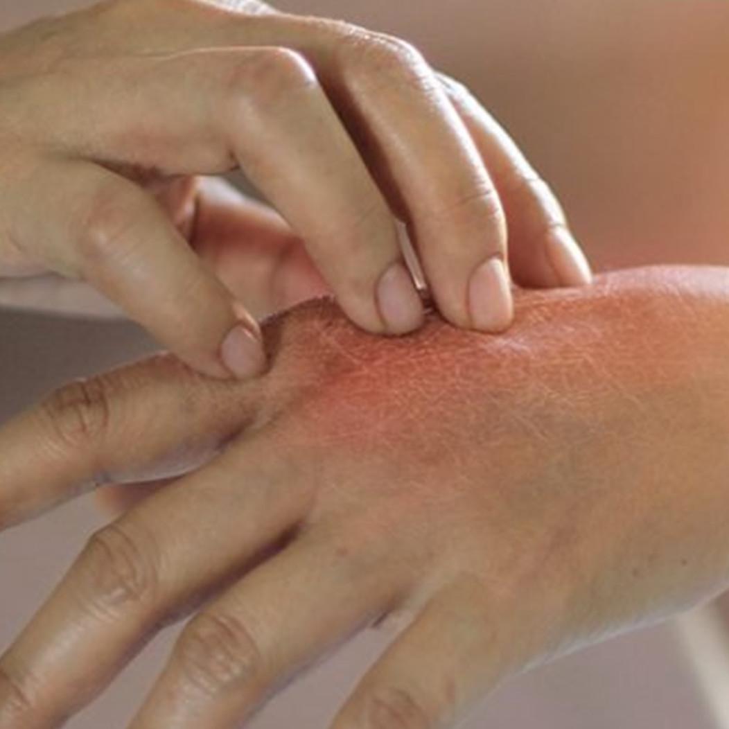 6 Cara mengatasi kulit kering karena sering mencuci tangan