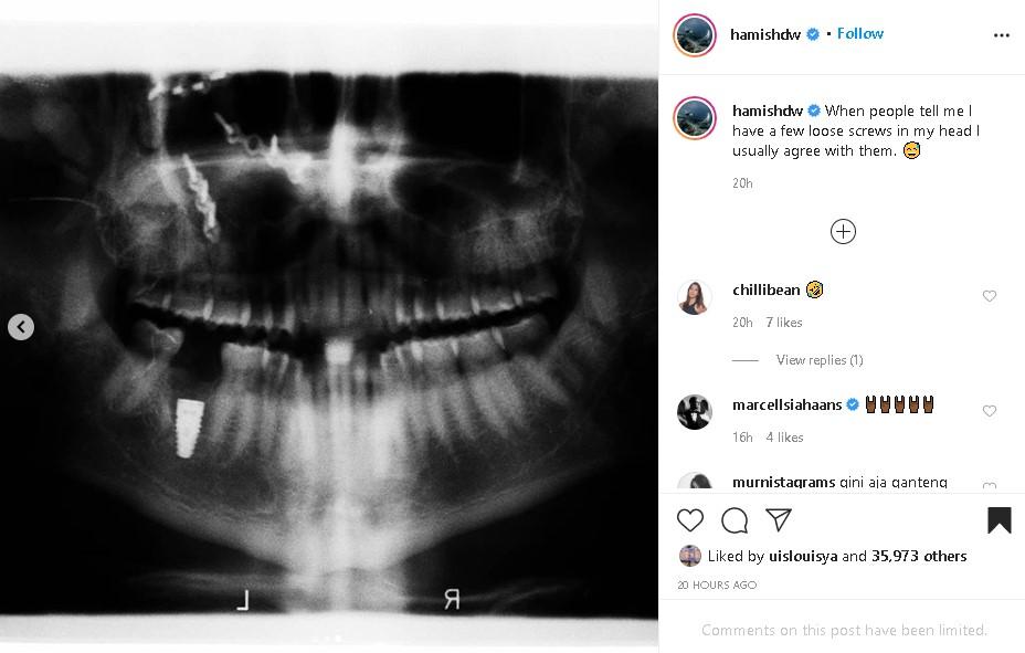 Hamish Daud X-Ray foto: Instagram/@hamishdw