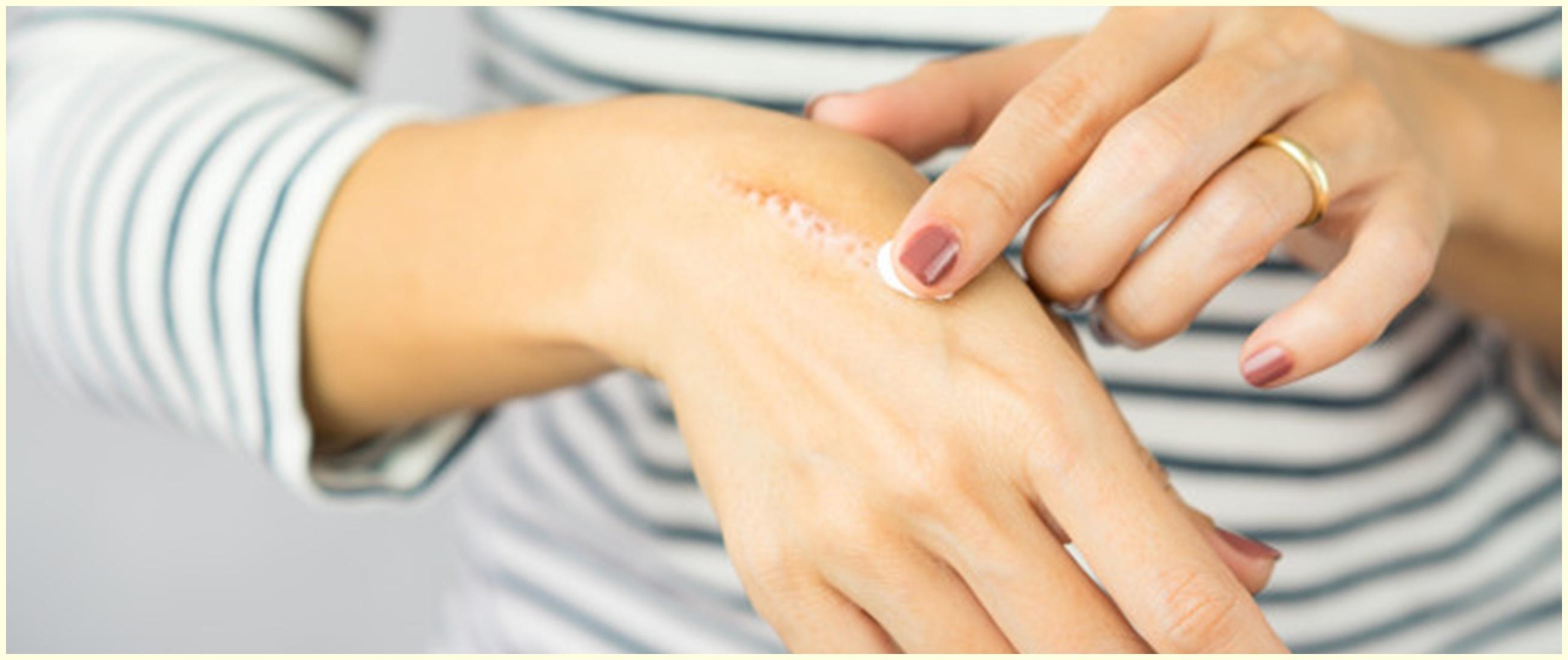 7 Cara menghilangkan bekas luka yang menghitam dengan bahan alami