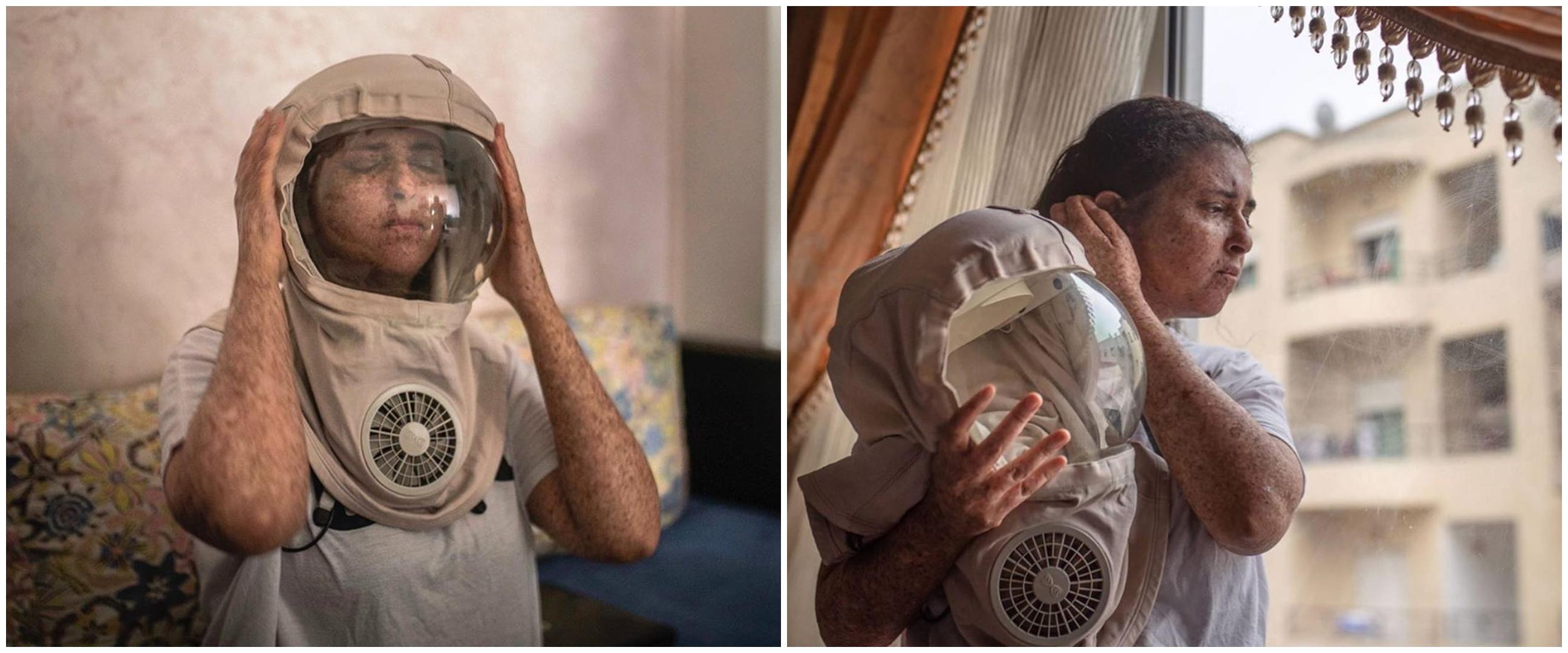 Kisah wanita pakai helm 20 tahun jika ke luar rumah, ini 8 potretnya