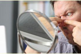 5 Cara alami menghilangkan komedo dengan cepat, tanpa efek samping