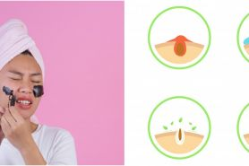 8 Cara mencegah komedo di wajah, ampuh banget
