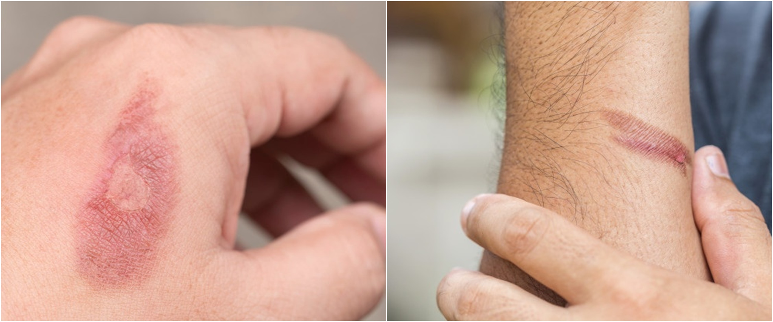 10 Cara menghilangkan bekas luka bakar secara alami