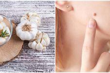 8 Manfaat bawang putih untuk kulit, atasi keriput dan peradangan