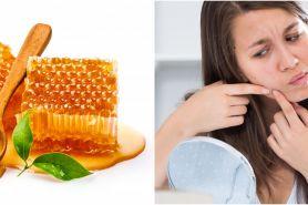 8 Cara mengobati jerawat dengan madu, aman untuk kulit