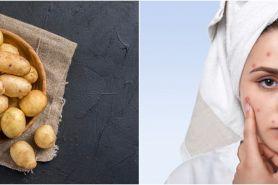 6 Manfaat kentang untuk wajah, bisa mengatasi jerawat