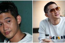10 Transformasi Rezky Aditya, senyumannya khas sedari kecil