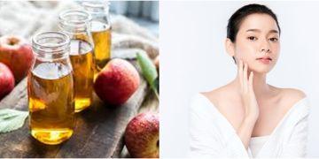 10 Manfaat cuka apel untuk kecantikan, hilangkan bekas jerawat