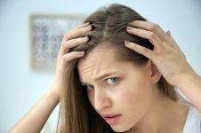 9 Tips merawat rambut rontok untuk mencegah kebotakan, yuk simak