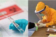 Prosedur penangan pasien Covid-19 sesuai gejala dan kriteria sembuhnya
