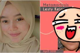 Potret perbedaan wajah Lesty Kejora sebelum & usai botox dan filler