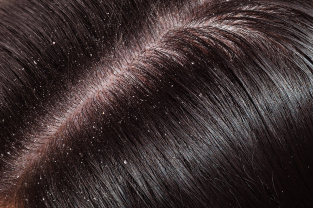 bawang merah untuk rambut © freepik.com