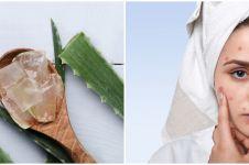 Cara membuat masker lidah buaya untuk hilangkan jerawat, mudah & aman