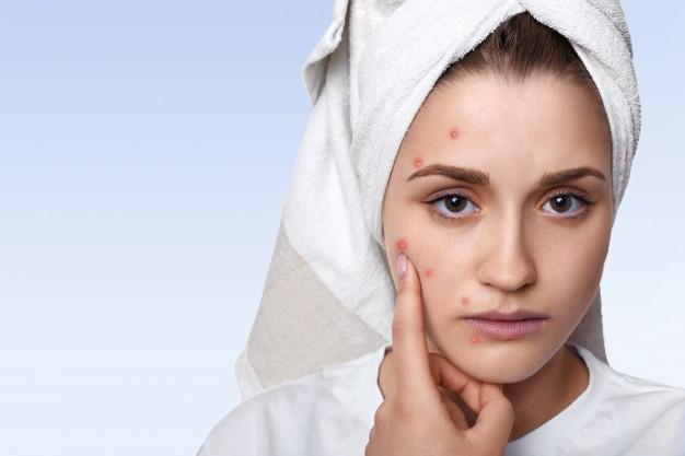 Cara membuat masker kopi untuk wajah di rumah freepik.com