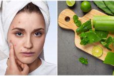 5 Cara membuat masker lidah buaya untuk wajah berjerawat
