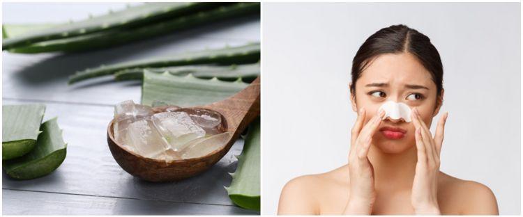 Cara membuat masker lidah buaya untuk obat komedo, mudah dan ampuh