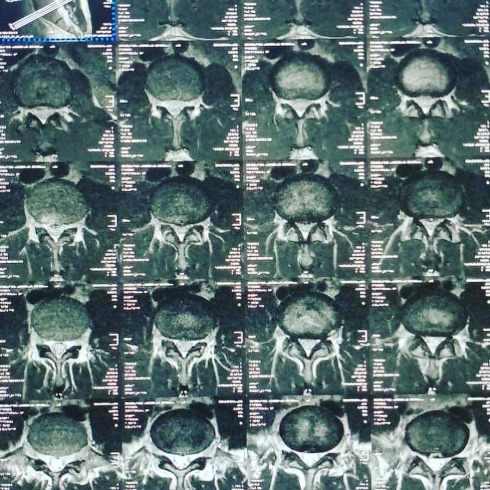 Deddy Corbuzier unggah hasil MRI kondisi tulang punggung Instagram