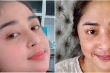 Potret terbaru Dewi Perssik sembuh dari Covid-19, alami gejala langka