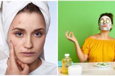 5 Cara membuat masker lidah buaya campur madu, aman dan mudah