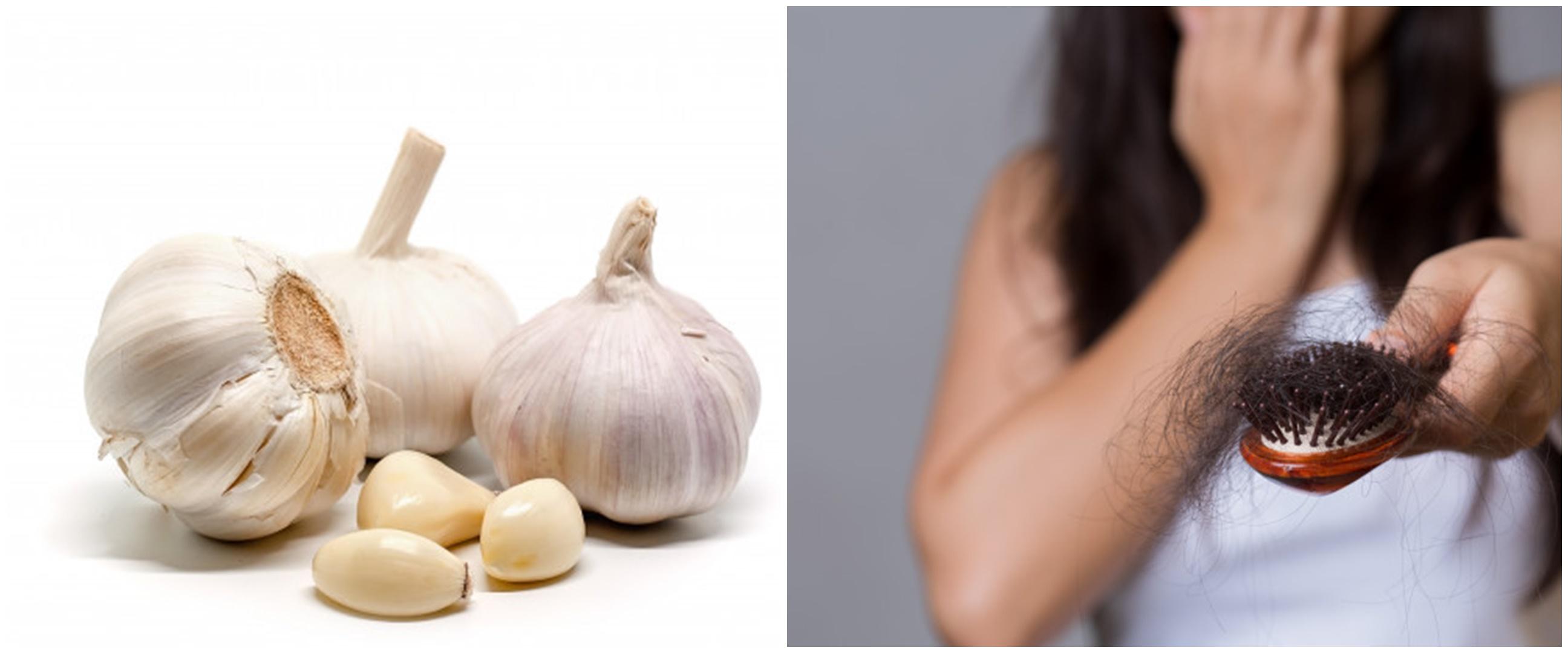 5 Manfaat bawang putih untuk rambut, bantu atasi ketombe