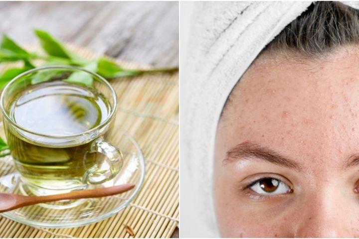 10 Manfaat teh hijau untuk kecantikan, dapat mengobati jerawat
