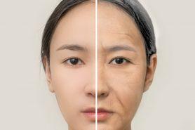 Yakin kondisi kulitmu bebas dari tanda penuaan dini? Cek di sini yuk!