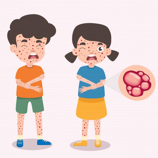 obat hilangkan cacar air © freepik.com