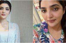 Ashanty sakit jelang pernikahan Aurel Hermansyah, autoimun kambuh