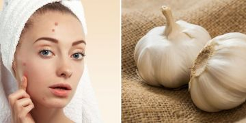 Mitos atau fakta, bawang putih bisa menghilangkan jerawat?